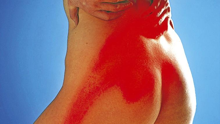 Brzdajte telesno težo in poskrbite za svoj hrbet!  (foto: Shutterstock.com)