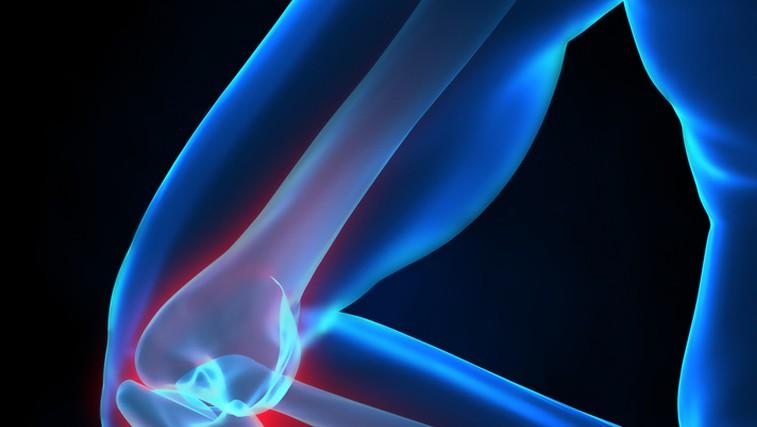 Tekaško koleno je eno od  najpogostejših poškodb pri tekačih.  (foto: Shutterstock.com)