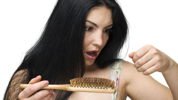 Izpadanje las (foto: Shutterstock.com)