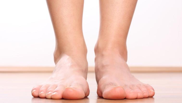 Ploska stopala - vzrok za bolečine v hrbtu (foto: Shutterstock.com)