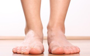 Ploska stopala - vzrok za bolečine v hrbtu