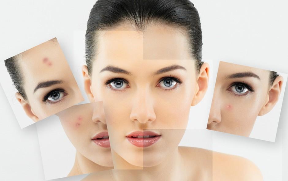 Kdaj po nasvet k dermatologu? (foto: Shutterstock.com)