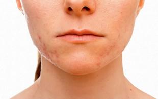 Katera hrana povzroča težave na koži?