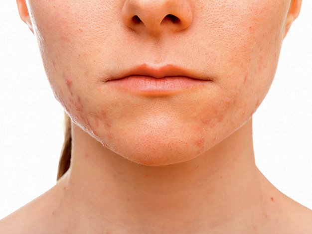 Katera hrana povzroča težave na koži? - Foto: Shutterstock.com