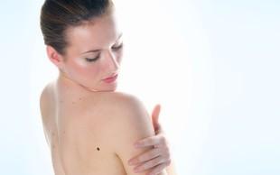 Samopregledovanje kože z metodo ABCDE