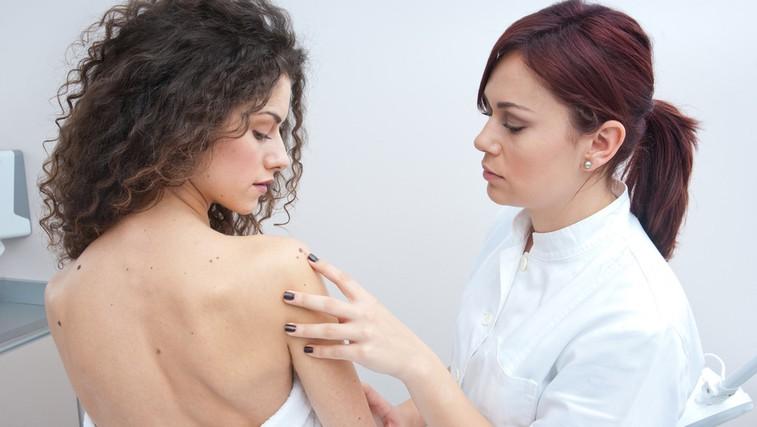 Preventivni pregled pri dermatologu (foto: Shutterstock.com)