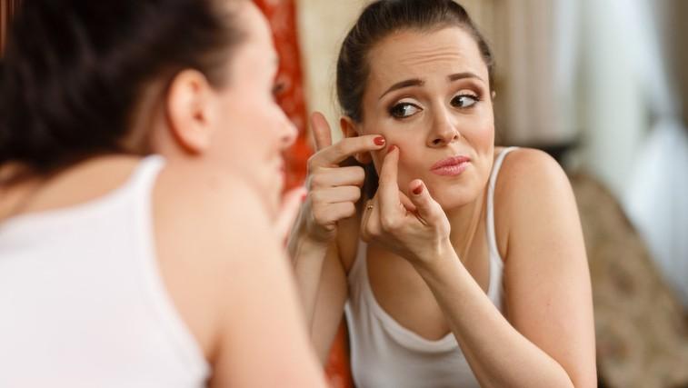 Miti in resnice o vplivu hrane na kožo (foto: Shutterstock.com)