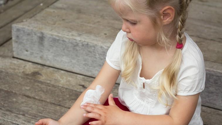 Zakaj pride do atopijskega dermatitisa? (foto: Shutterstock.com)