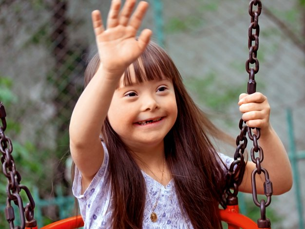 V Sloveniji je trenutno okoli 3000 oseb z Downovim sindromom