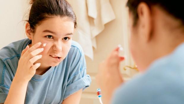 Kako si pomagati z najstniškimi mozolji (foto: profimedia)