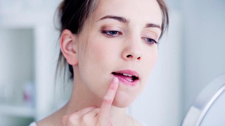 Preprost domač trik proti razpokanim ustnicam (foto: Profimedia)