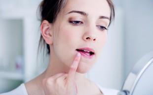 Preprost domač trik proti razpokanim ustnicam