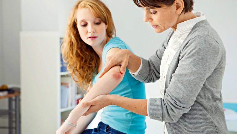 Na kaj naj bo bolnik s psoriazo (luskavico) pozoren (foto: Shutterstock)