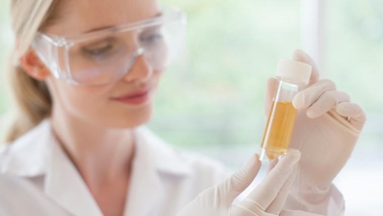 7 dejstev o urinu, ki vas bodo zagotovo presenetila (foto: Profimedia)