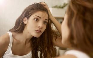Vaš obraz je  ogledalo zdravja