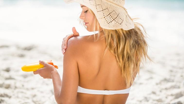 7 naravnih trikov, kako ublažiti sončne opekline (foto: profimedia)