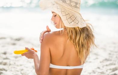 7 naravnih trikov, kako ublažiti sončne opekline
