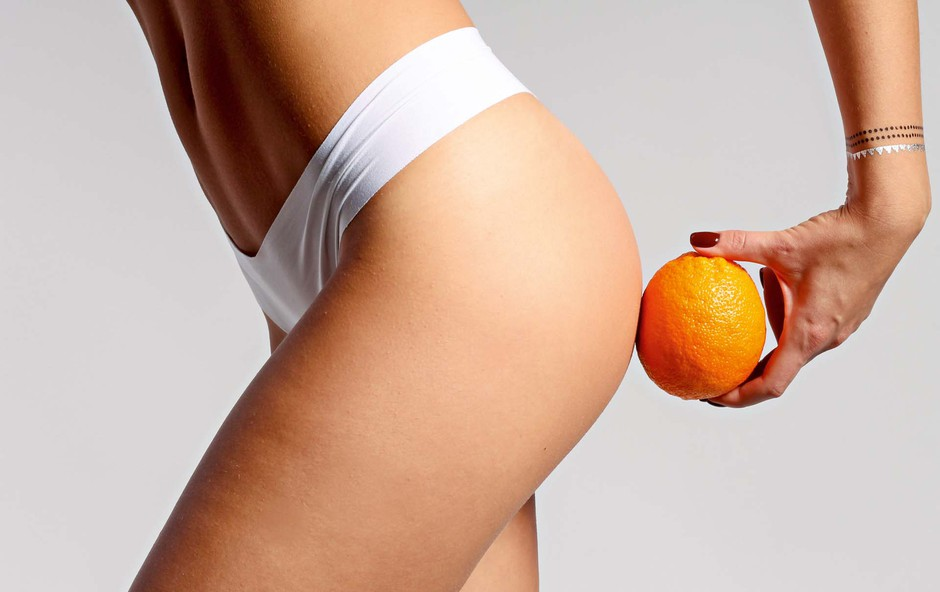 Lotimo se celulita: naravno in dosledno (foto: Shutterstock)