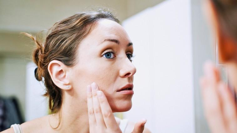 Nizka raven teh hormonov povzroči prezgodnje staranje (foto: Profimedia)
