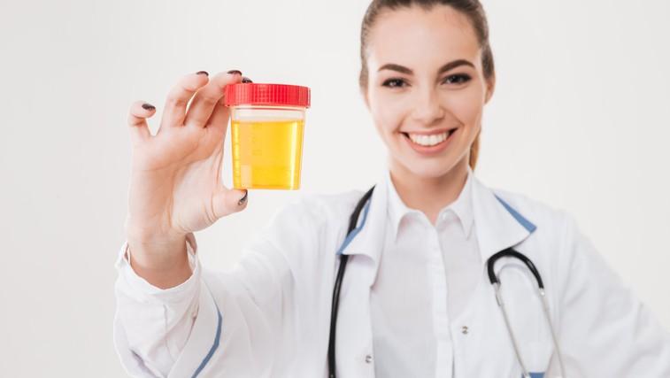 Kaj vse razkrivata barva in vonj vašega urina? (foto: Profimedia)