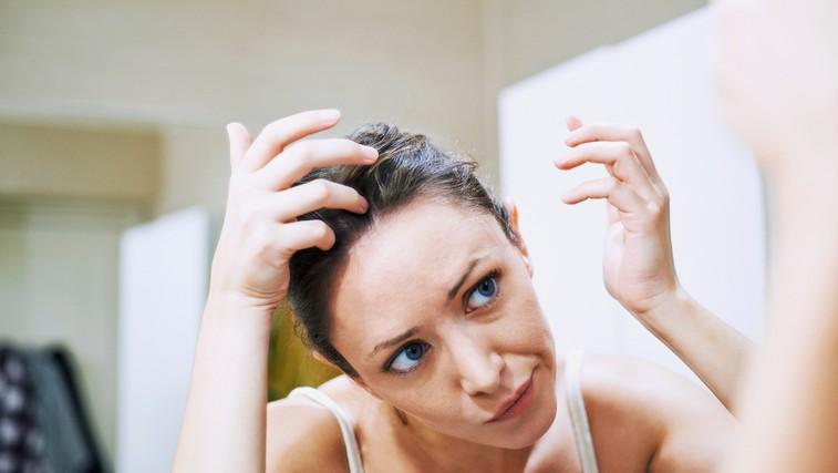 Če vas neprestano srbi lasišče in ste dobili prhljaj … Lahko gre tudi za luskavico in z zdravljenjem morate začeti ta trenutek! (foto: Profimedia)