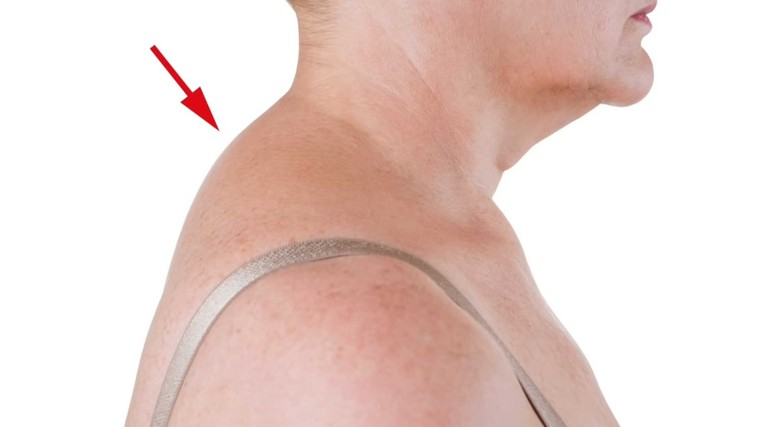 4-minutni trik, s katerim se znebite grbe na vratu (VIDEO) (foto: Milton Chiropractic Clinic, Cambridge YouTube PrtScr)
