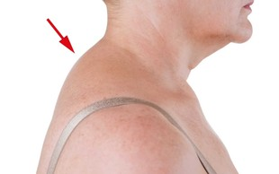 4-minutni trik, s katerim se znebite grbe na vratu (VIDEO)