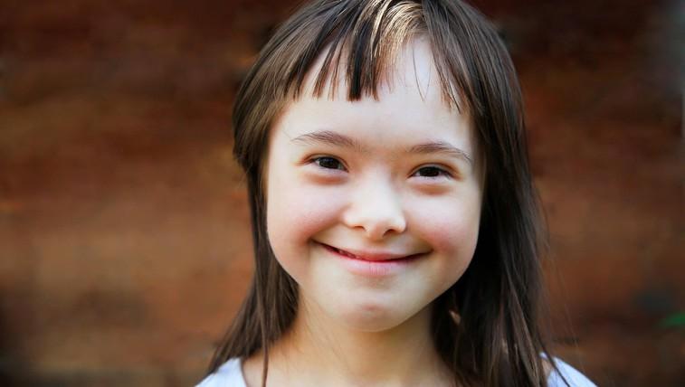 21. marec – svetovni dan Downovega sindroma (foto: Profimedia)