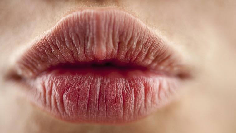 Kaj vam ustnice povedo o vašem zdravju? (foto: Profimedia)