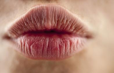 Kaj vam ustnice povedo o vašem zdravju?