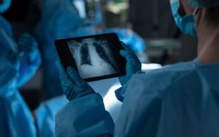 Šokantne fotografije pljuč pacientov: Oba zbolela za covidom! Eden cepljen, drugi ne!